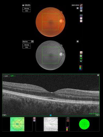 oct eye test norwich